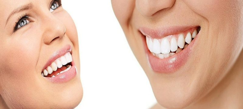 4 Tips for Choosing a Cosmetic Dentist