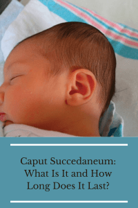 Caput Succedaneum: What Is It and How Long Does It Last Graphic