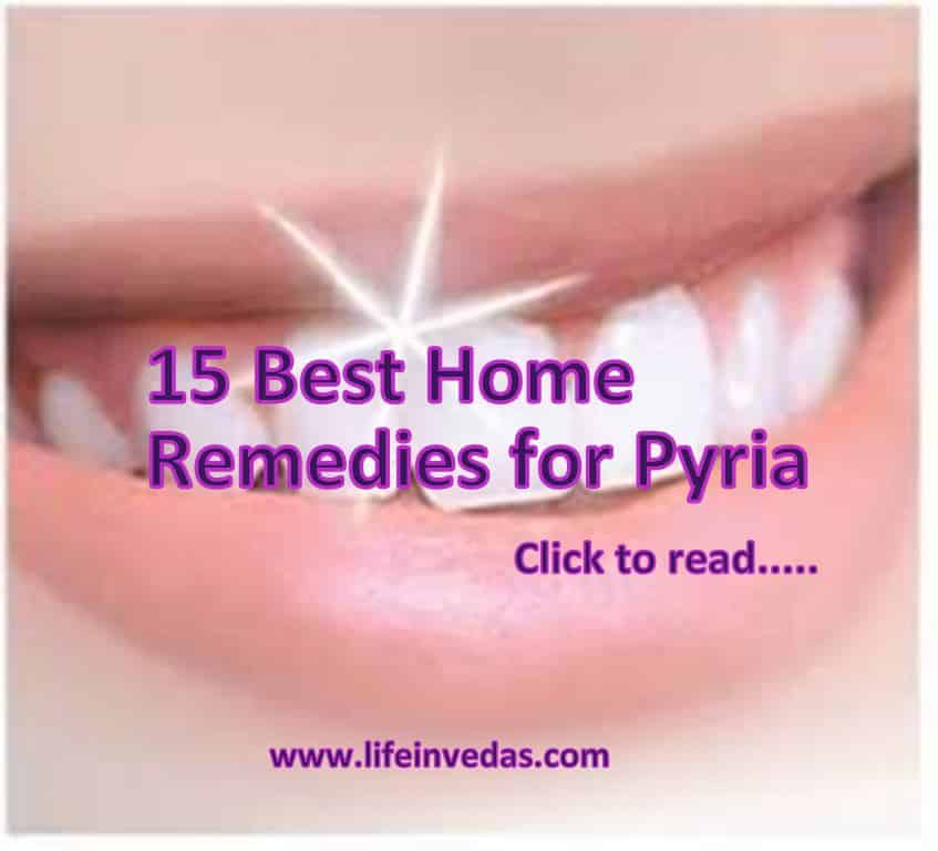 15 Tips To Cure Pyria Naturally At Home Lifeinvedas Com