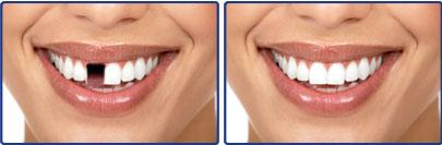 individual dental insurance plans