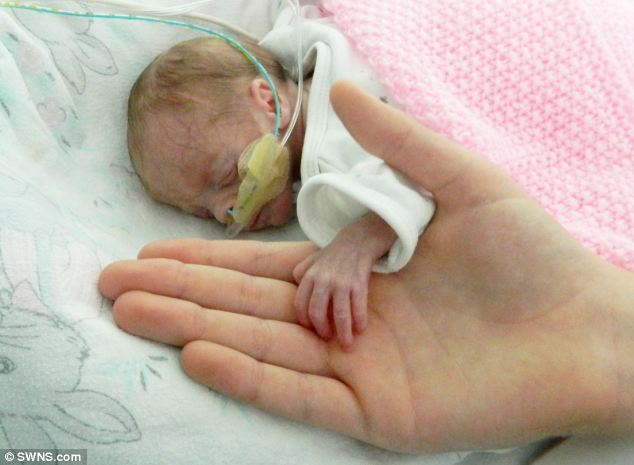 Planned Parenthood Keeps Lying About Babies Who Survive Abortions