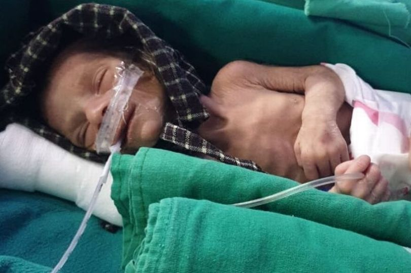 Newborn Baby Girl Miraculously Survives Being Buried Alive for Two Days