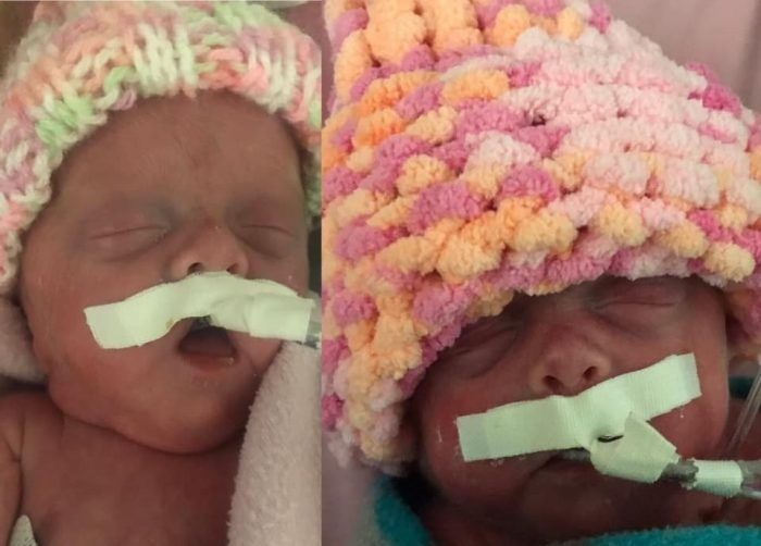 22-Week-Old Premature Baby Girls are the Smallest Twins to Ever Survive