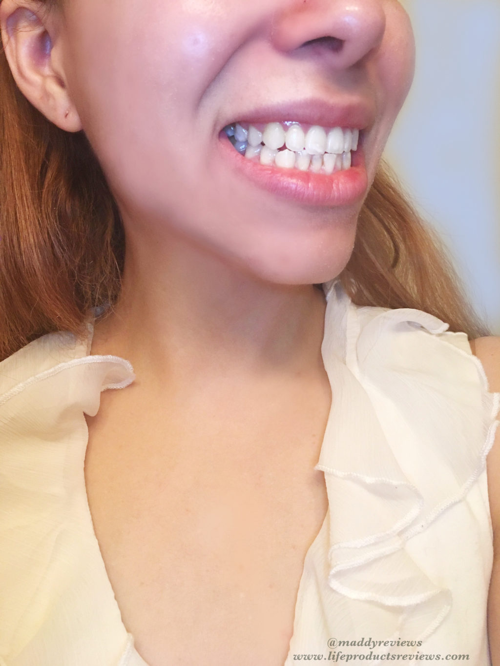 After-Right-side-result-yellow-stain-teeth-results-smile-brilliant-pearly-whites-whitening-effect