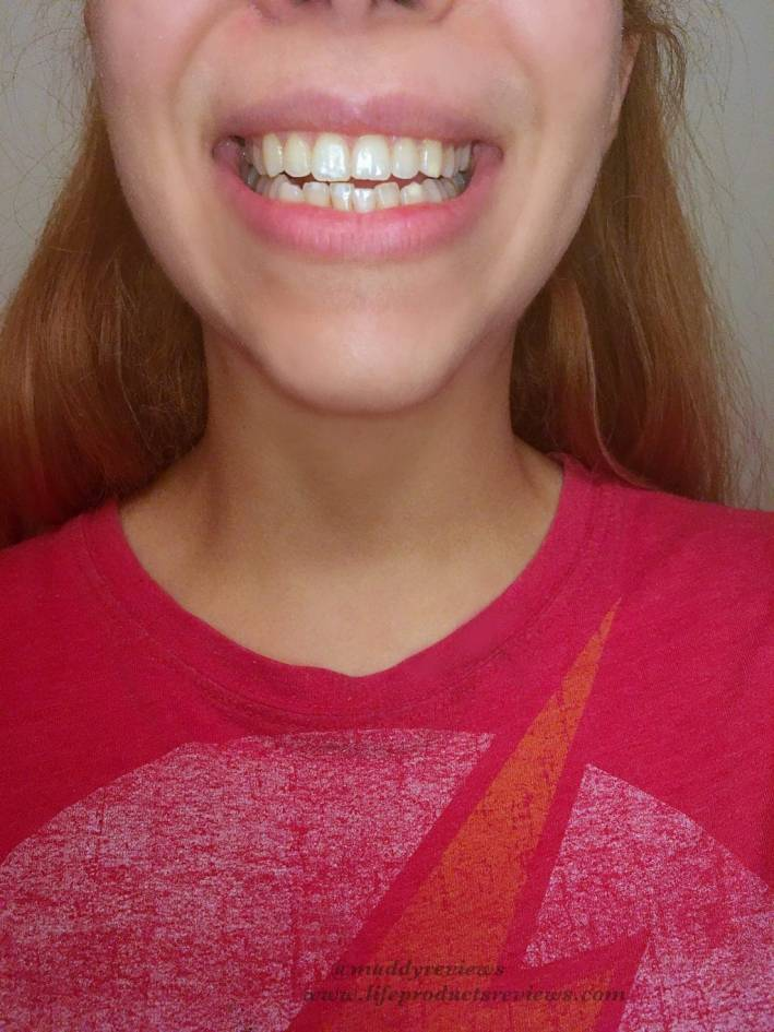 Front-teeth-yellow-stain-before-using-whitening-gel-kit