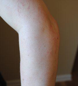 Eczema improved after shea butter