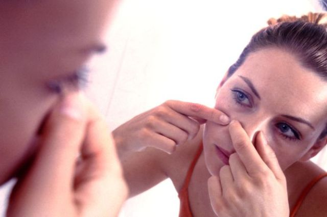woman-squeezing-pimple-on-her-cheek