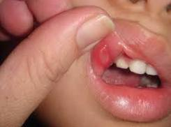 Caring for a Toddler with Mouth Sores: A List of Foods and More
