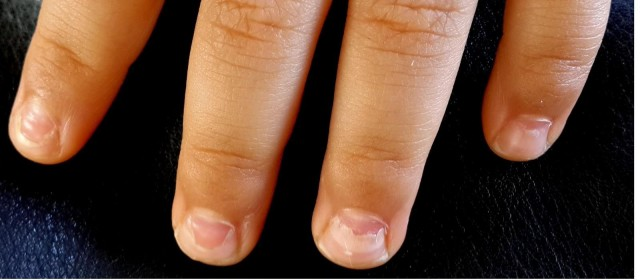 Peeling Nails? Nails Falling Off? Onychomadesis after Hand, Foot ...