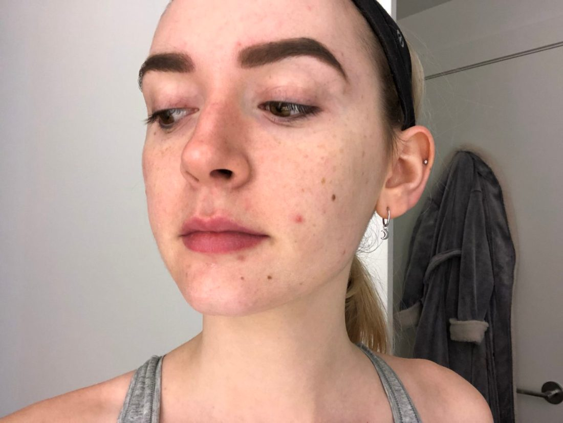 How I Clear Acne | Lexli Skincare Review | Life With Kendal