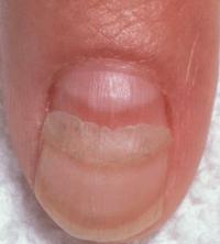 Ridges in Fingernails, Toenails, Vertical, Horizontal ...