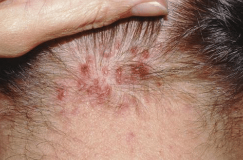 Pimples On Scalp Painful On Head That Hurt Wont Go