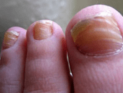 ridges in fingernails toenails