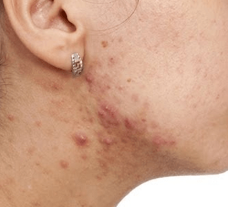 Pimples on Neck Back and Jawline Meaning Front Causes ...