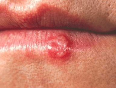 how to get rid of cold sores on lip fast at home