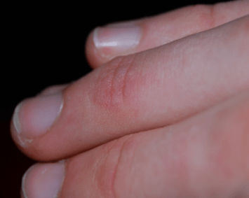 red bumps on fingers