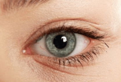 How To Get Rid Of Under Eye Wrinkles Overnight Fast