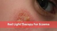 Eczema Ultraviolet Light Treatment