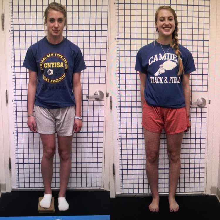 Image result for leg lengthening surgery Leg Lengthening Surgery, Its Cost, and Risk
