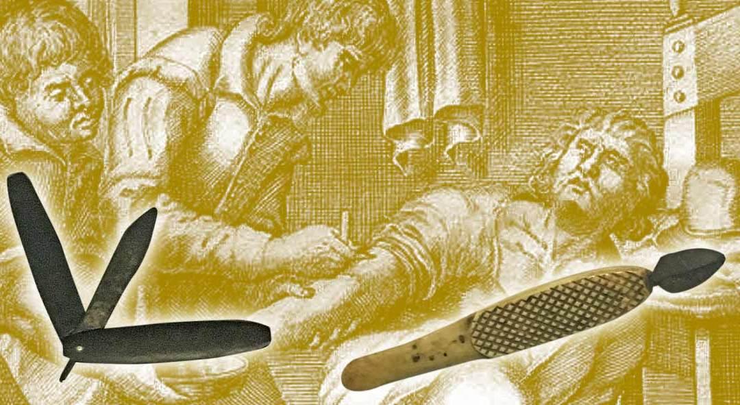 Teoria Umorale e rogna: la cura uccideva più della malattia.
