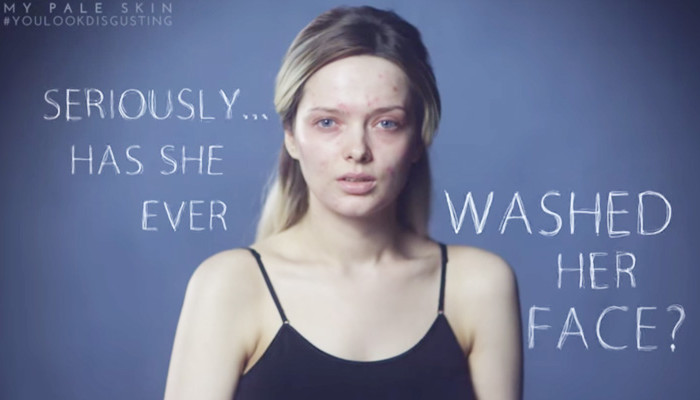 You look disgusting: Em Ford contro le aspettative irrealistiche dei social media