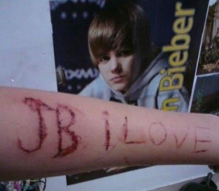 justin-bieber-fan-scar