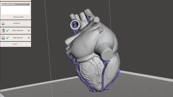 Human Heart with support