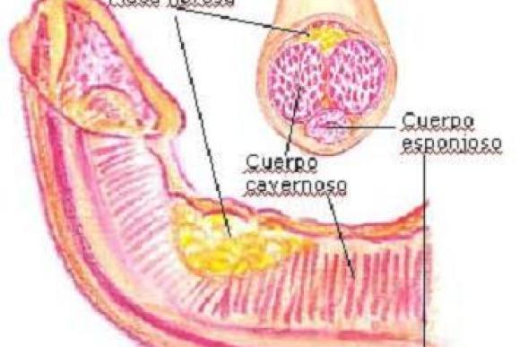 Síndrome o enfermedad de peyronie