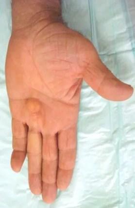 enfermedad de dupuytren