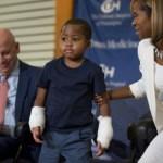 μεταμόσχευση δύο χεριών σε παιδί1