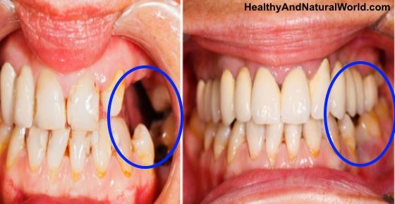 epanastatiki-anakalipsi-pite-antio-sta-odontika-emfitevmata-ke-megaloste-ta-dika-sas-dontia-1
