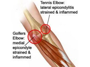 medial and lateral  tendons at epicondyles