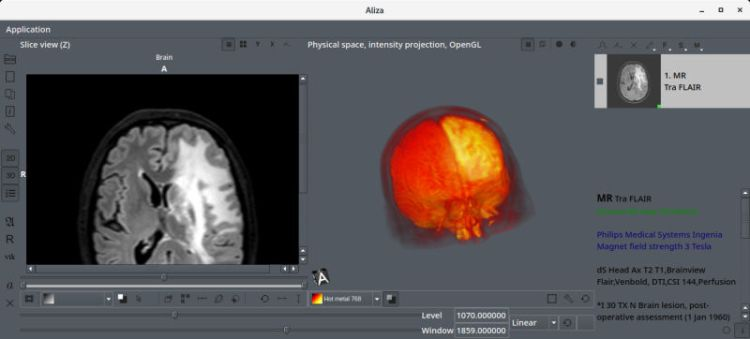 Aliza - excellent medical imaging and DICOM viewer software