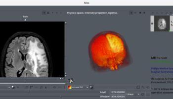 16 Best Free Linux Medical Imaging Software - LinuxLinks 558a55e2f20