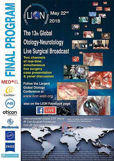 the 13th global otology-neurotology live surgical broadcast, may 22nd, 2018 The 13th Global Otology-Neurotology Live Surgical Broadcast, May 22nd, 2018 01