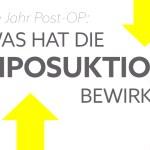 lipoedem mode erfahrung liposuktion