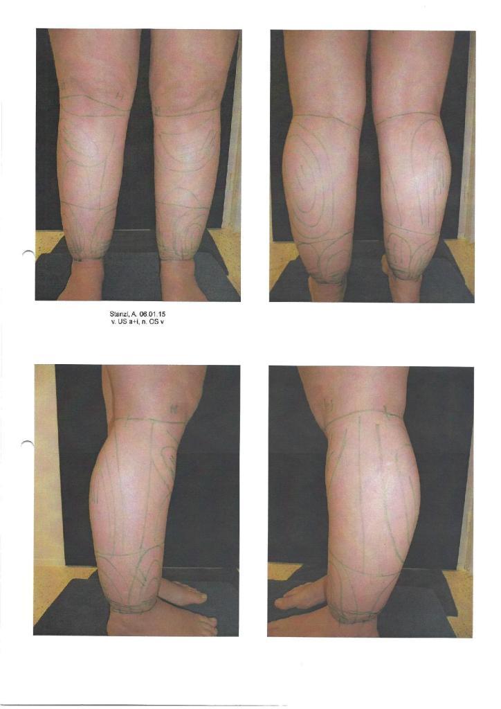 liposuktion liposuction lipödem lipoedem lipoedema lipedema erfahrung unterschenkel vorher hanseklinik lübeck