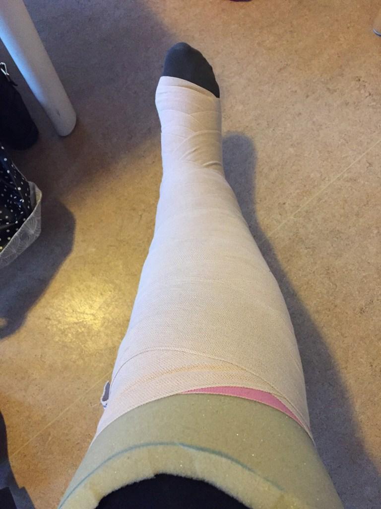 lipoedem mode found a self-help group melanie How do I bandage myself?
