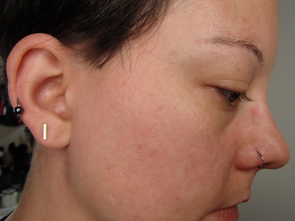 ORG MIneral Peel - before