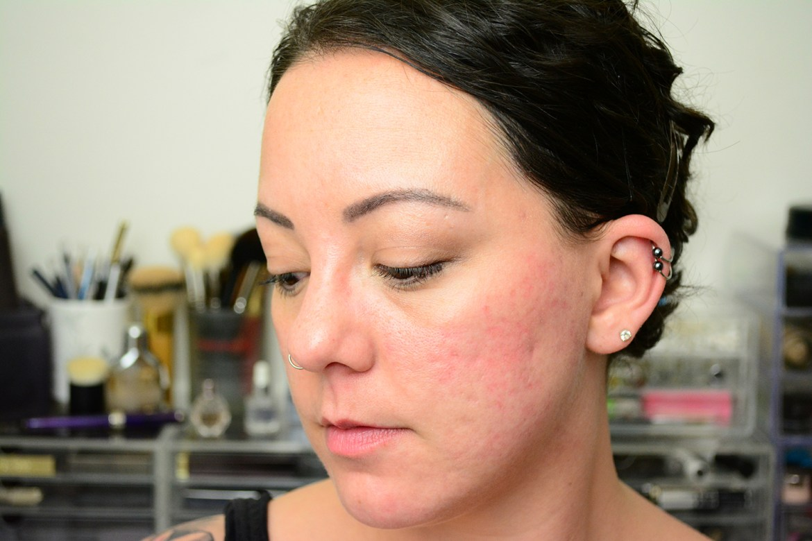 Retinoid update: how I got rid of my acne discoloration
