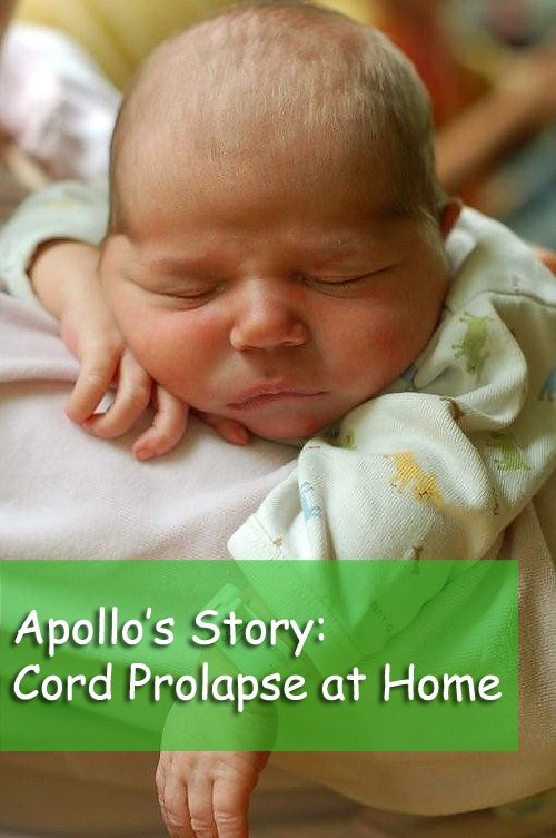 cord prolapse at home