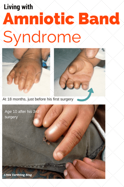 Living with Amniotic Band Syndrome