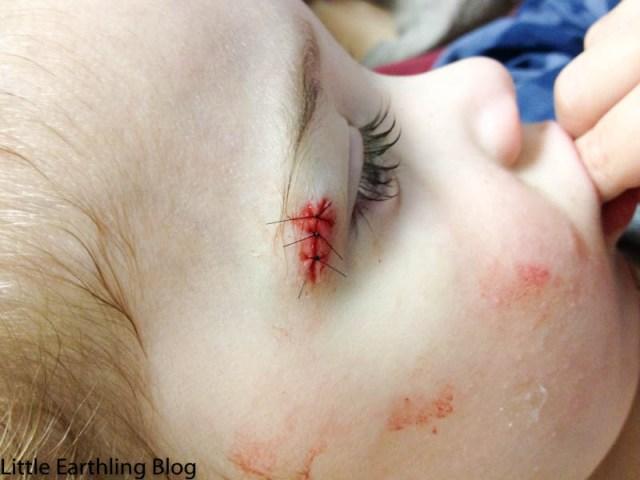 Apollo with stitches near his eyebrow.