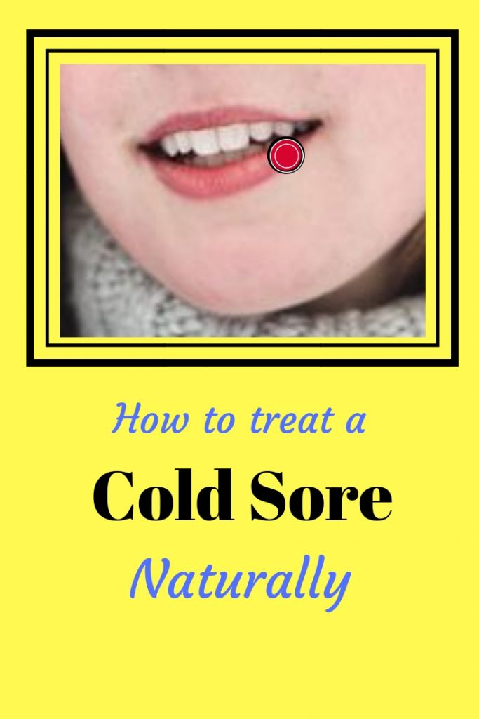 How to treat a cold sore naturally, A lady with a cold sore on her lip. littlelostcreations@gmail.com
