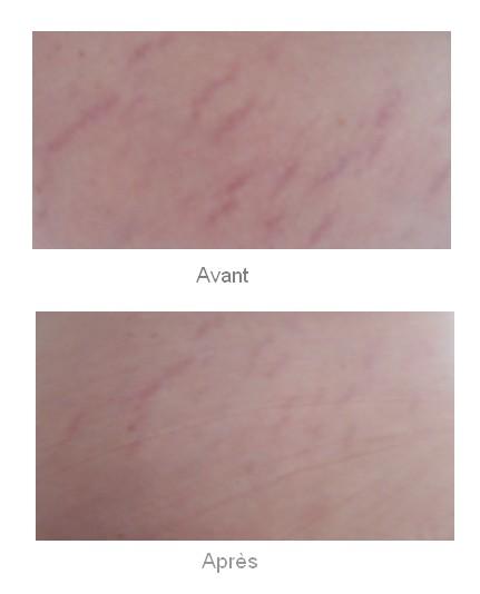 avant_apres