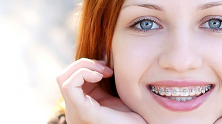 Signs That Your Child Needs Braces