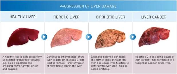 progression of liver damage