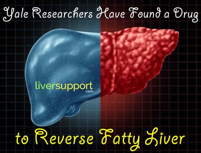 Reverse Fatty Liver - New Drug Discovered I LiverSupport.com