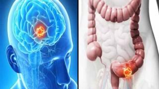 «Σκοτώστε» τα καρκινικά κύτταρα βγάζοντας απλώς ΑΥΤΟ από τη διατροφή σας!