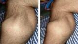 Οι μύες τρελάθηκαν- δείτε τι συμβαίνει στο πόδι ενός αθλητή που παθαίνει κράμπες (Video)